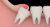 20lik diş